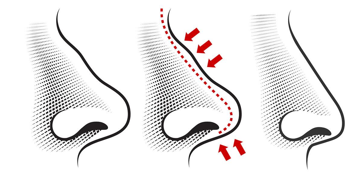Rinoplastica Bari